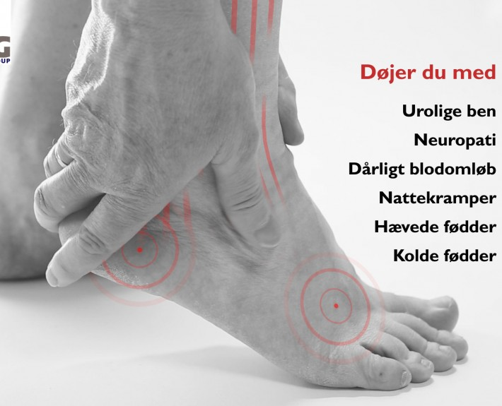 symptomer på dårligt blodomløb